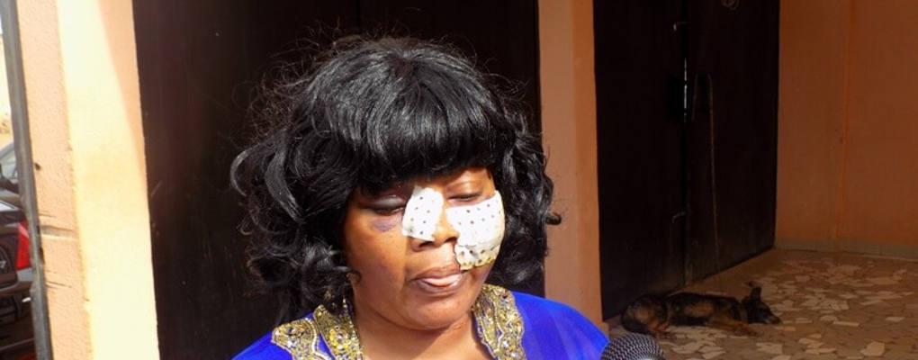 Burkina Faso : l'artiste Adja Divine rouée de coups par une foule en furie