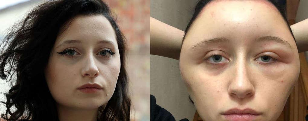 Colorants pour cheveux : une jeune fille qui a failli mourir dénonce